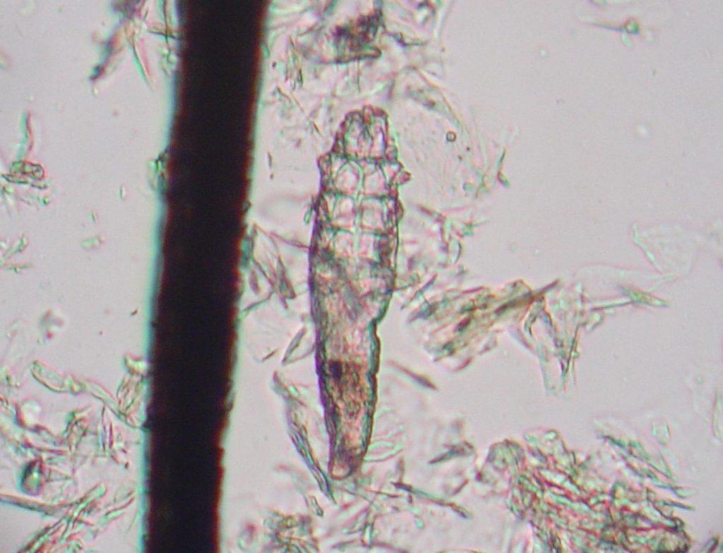 Mikroskooppikuva koiran sikaripunkista